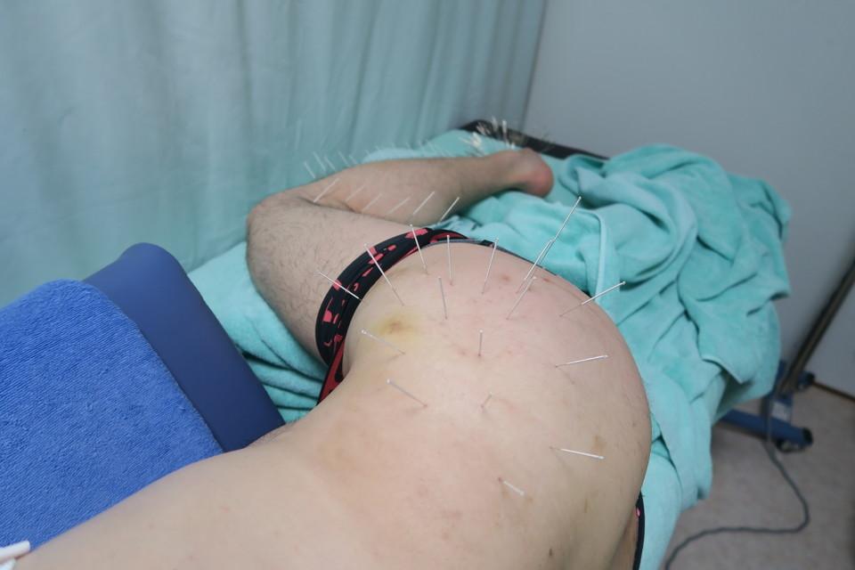 坐骨神経痛の刺鍼の様子