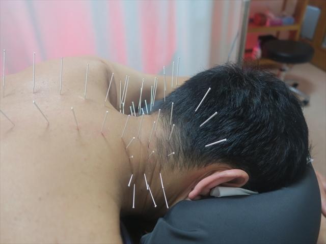 肩こりへの鍼灸刺鍼の様子