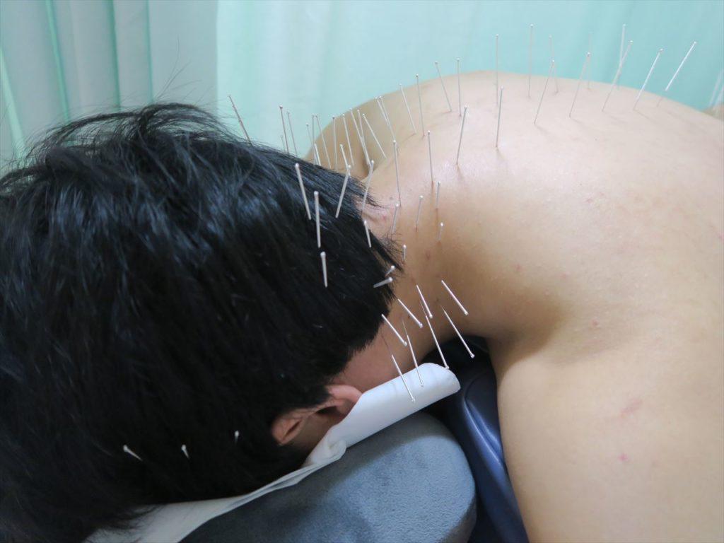 頭痛への鍼灸刺鍼の様子
