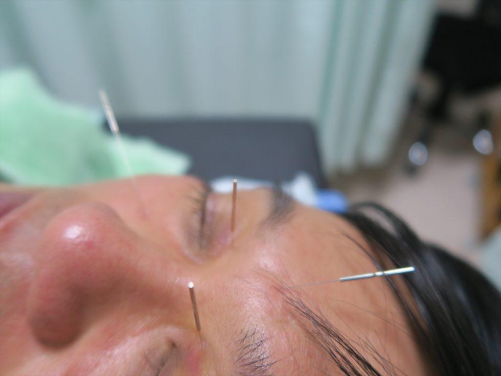 眼精疲労の鍼灸刺鍼の様子