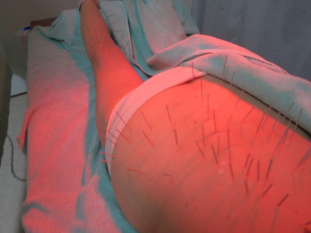 膝関節痛の刺鍼の様子